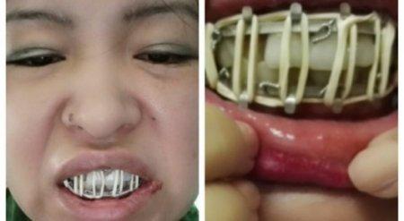 Удаление зуба для павлодарки обернулось переломом челюсти