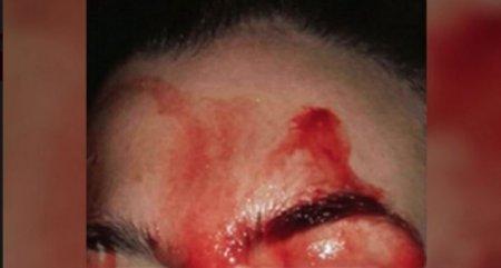 Потеющую кровью девушку госпитализировали в Италии