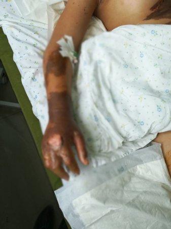 В Мангистауской области клиент облил кипящим маслом продавца столовой