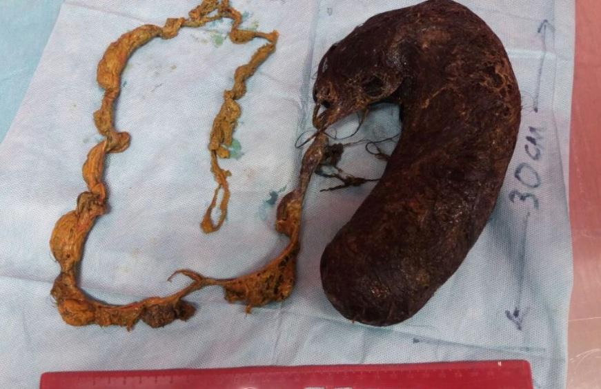 Косички и вредные привычки: В Мангистау из желудка школьницы извлекли 30-сантиметровый комок волос