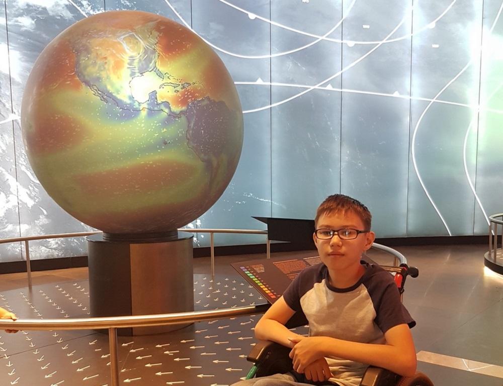История в фотографиях: Уникальный «хрустальный» мальчик из Актау