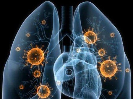 В США нашли непобедимый возбудитель пневмонии