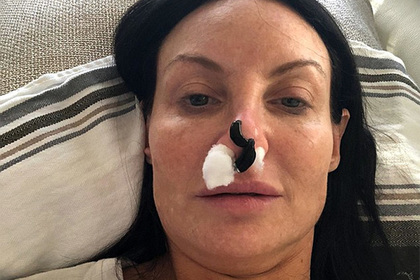 Американка исправила изуродованный хирургом нос пиявками