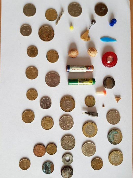 В Актау  из пищевода годовалого ребенка врачи извлекли батарейку