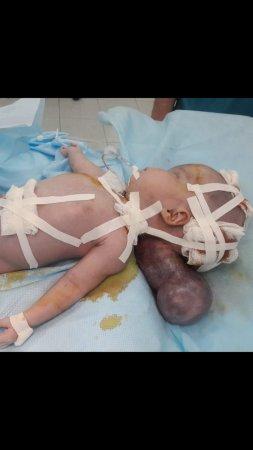Врачи Мангистау спасли жизнь новорожденному ребенку