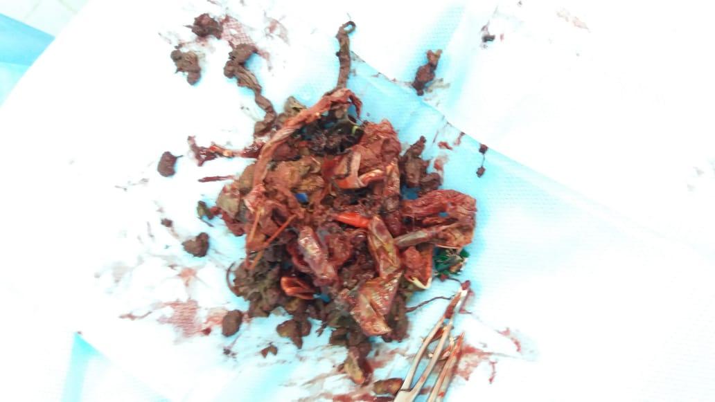 Множество инородных предметов извлекли врачи Жанаозена из кишечника 12-летней девочки