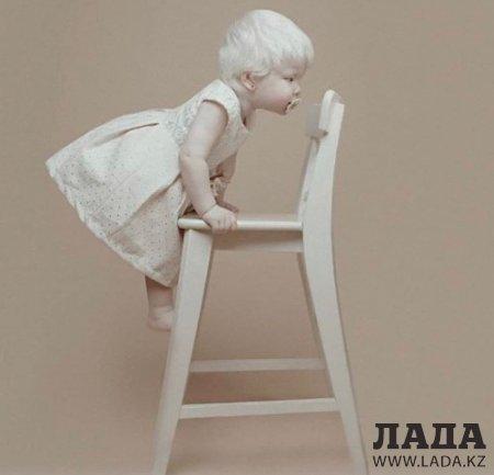 Белоснежки: В актауской семье родились два ребенка-альбиноса