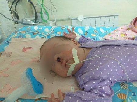 В Актау новорождённый младенец лишился носа