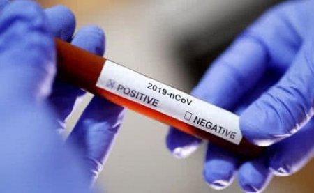 До 423 увеличилось количество заражённых коронавирусом в Казахстане
