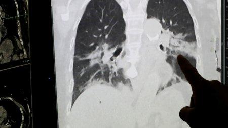 Стали известны результаты вскрытия тел жертв коронавируса