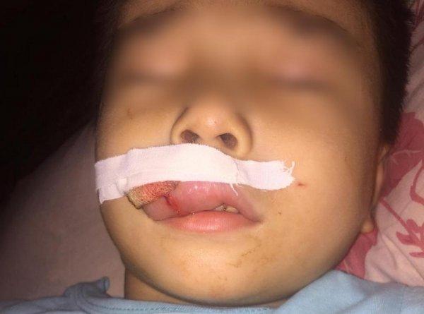 Ребёнок пострадал на набережной Актау