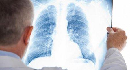 Причины массового заражения пневмонией в РК станут известны через две недели — Минздрав