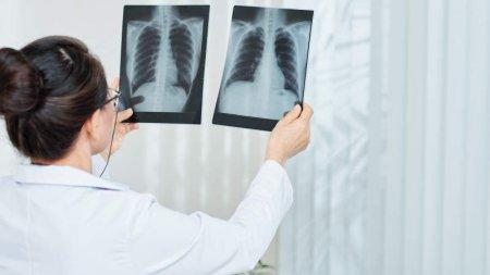 «Неизвестной пневмонии» в Казахстане нет - комментарий российских врачей