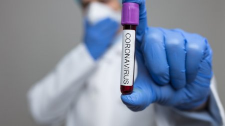 Еще 1544 новых случая заражения коронавирусом зарегистрировали в Казахстане